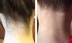 neck Laser hair removal