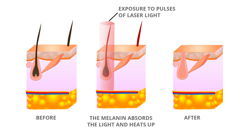 How Laser Hair Removal Treatment Works