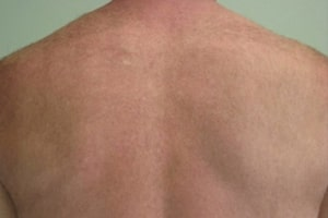 Back Hair Removal in Lahore After Treatment
