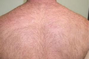Back Hair Removal in Lahore Before Treatment