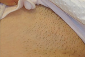 Bikni Hair Removal in Lahore Before Treatment