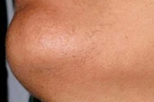 Beard Line Hair Removal in Lahore After Treatment