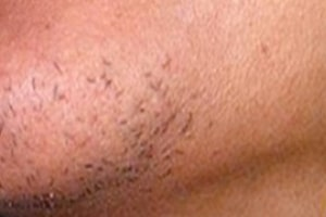 Beard Line Hair Removal in Lahore Before Treatment
