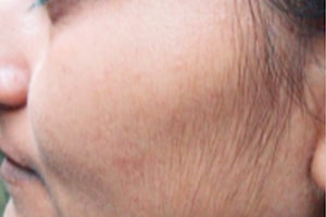 Face Hair Removal in Lahore Before Treatment
