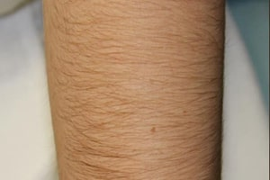 Leg Hair Removal in Lahore Before Treatment
