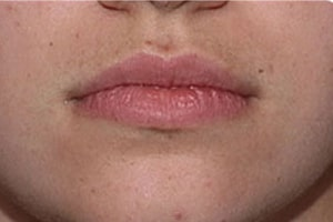 Upper Lip Hair Removal in Lahore After Treatment