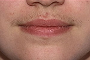 Upper Lip Hair Removal in Lahore Before Treatment